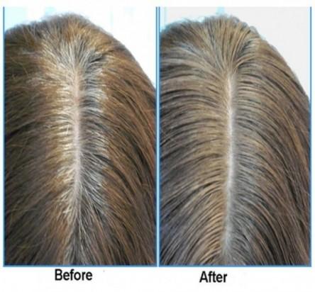 anti gray hair 7050 60 caps anti gray hair supplement